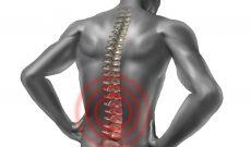 Lombalgie : quel genre de douleur s'agit-il ?